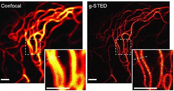g-STED super-resolution microscopy technique boosts contrast and resolution in imaging live cells