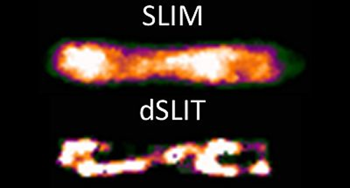 Comparison of a SLIM and dSLIT image of an E. coli cell