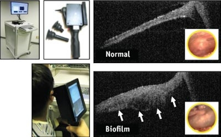 Schematic and picture of a handheld scanner that doctors can use to monitor biofilms in the ear. Pictured are a healthy middle ear and one covered with a biofilm