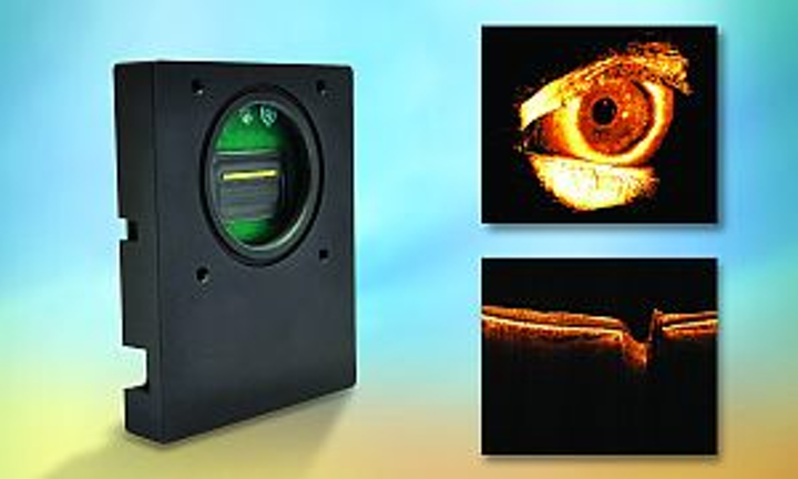 Sensors Unlimited model GL2048L-10A digital linescan camera (left); a whole front of an eye in 3D, captured in-vivo with the GL2048L-10A camera at 1310 nm, imaging 8 mm from the eyelid to the lens below the iris, with 1.3 µm resolution (top right); and a retina, acquired at 1.05 µm and demonstrating 6 mm depth range with 11 µm resolution (bottom right). (Images courtesy of Thorlabs, whose Telesto SD-OCT system was used in scanning)