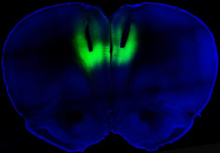 Optogenetic brain stimulation could lead to treatment for cocaine addiction