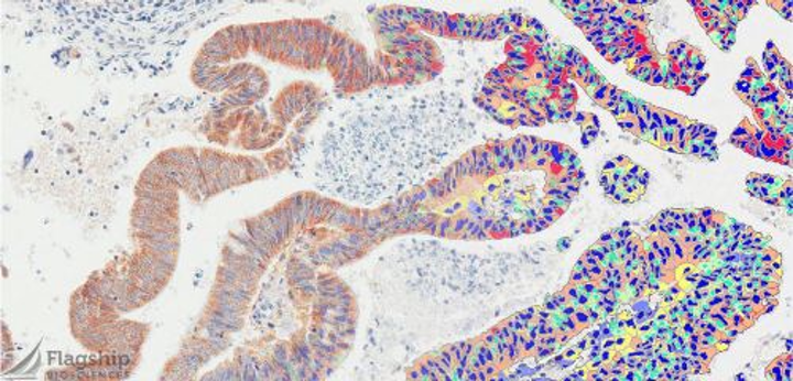 Content Dam Bow Online Articles 2015 September Datacolor Flagship Tissue Analysis Web