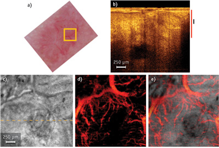OPTICAL COHERENCE TOMOGRAPHY: NIR laser takes OCT faster and deeper