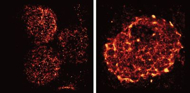Super-resolution microscopy reveals more on how the immune system is