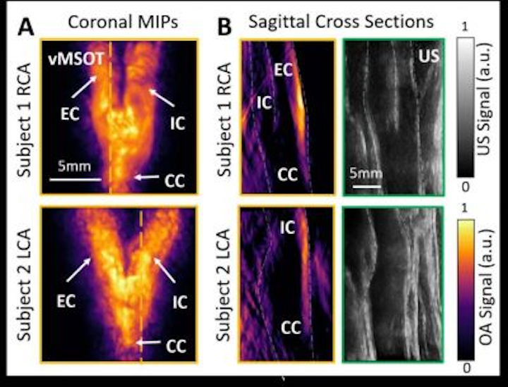 Content Dam Bow Online Articles 2019 02 Optical Imaging Cardiovascular Risk