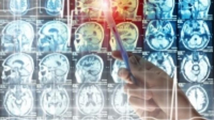 Functional near-infrared spectroscopy (fNIRS) instrument capable of identifying stroke-affected areas of the brain