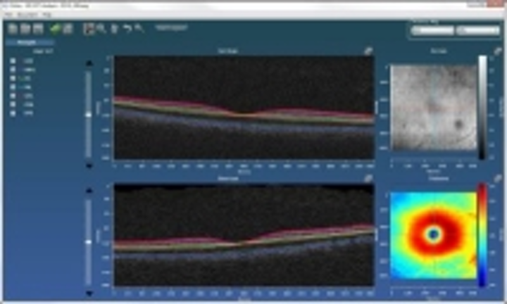 Orion advanced optical coherence tomography (OCT) analysis software from Voxeleron