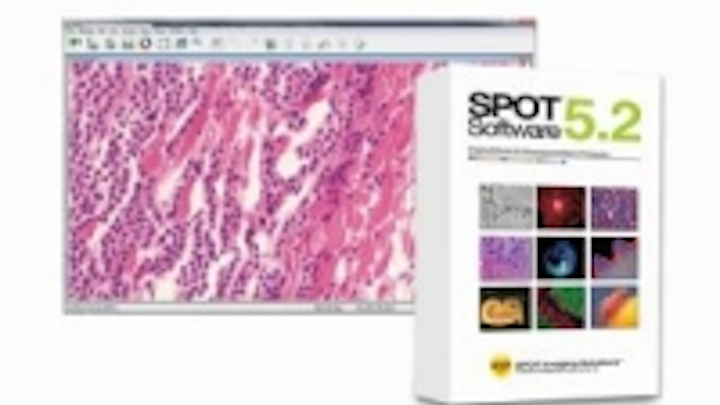 Content Dam Bow En Articles 2014 12 Software For Bioimaging Cameras By Spot Imaging Solutions Leftcolumn Article Thumbnailimage File