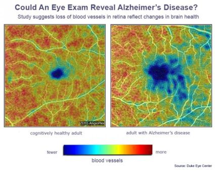 Content Dam Bow Online Articles 2019 03 Oct Ophthalmology Alzheimers