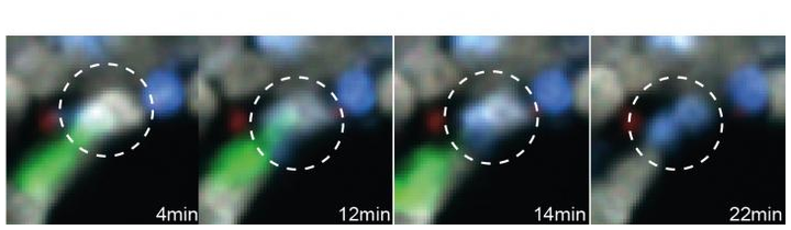 Intravital two-photon microscopy of the bone marrow of a mouse with B cell lymphoma shows a CAR T cell (green) come into contact with a live tumor cell (gray) and quickly killing it (causing it to turn blue).