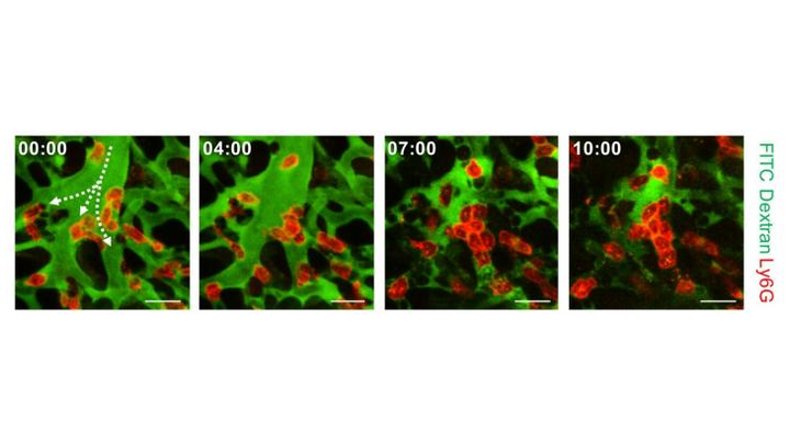 Aggregation of neutrophils and consequent flow disturbance in pulmonary arteriole in sepsis-induced lung injury is shown.
