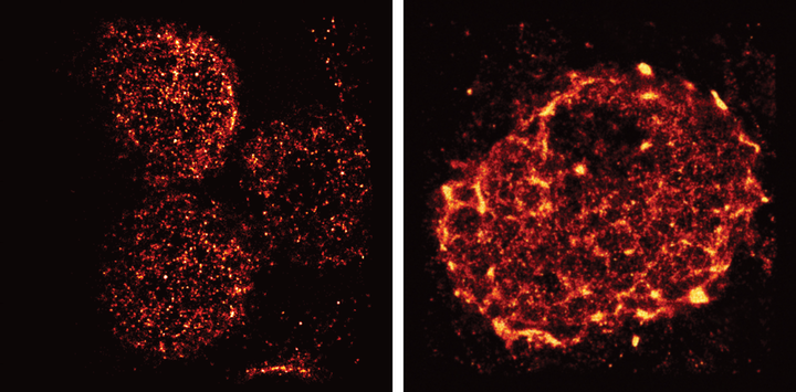 Salk scientists used light-sheet super-resolution imaging to capture the rearrangement of T-cell receptors from nanometer-scale protein islands (left) to micrometer-scale microclusters (right) after T-cell activation in mouse lymph nodes.