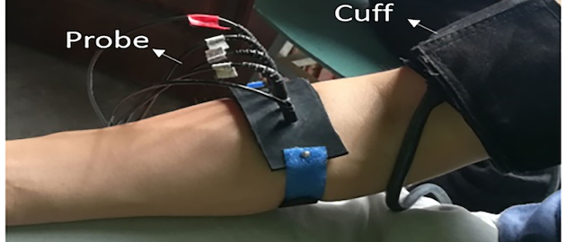 In the experiment, the blood circulation of the forearm was obstructed by the arm cuff for three minutes.