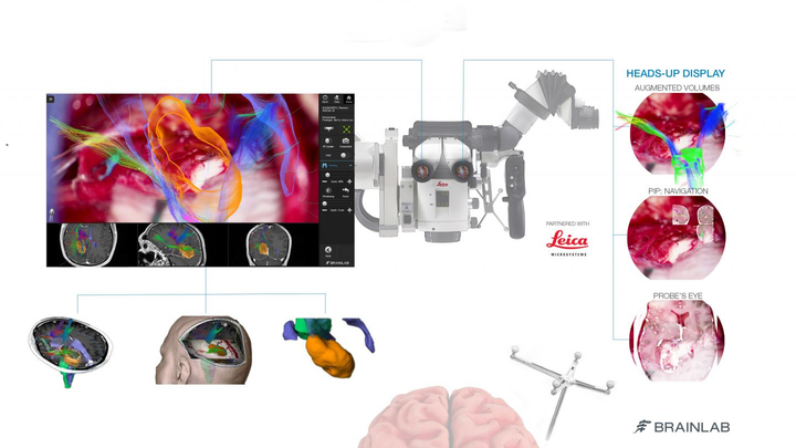 CaptiView overlays critical virtual reality imaging directly onto the brain when viewed through the eyepiece, known as the ocular, during surgery.