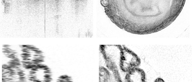 The image quality of a normal OCT scan (left) and a new OCRT scan (right) are demonstrated with a mouse vas deferens sample. Note how the OCT scan quickly deteriorates with depth while the OCTR scan produces a complete image (top), and the increase in fine detail and reduction in noise between the two (bottom).