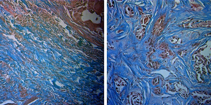 Histological staining shows a radiation-sensitive tumor (left) and radiation-resistant tumor (right); the researchers found that following radiation, the amount of collagen (blue) increased to a greater extent in the sensitive tumors.